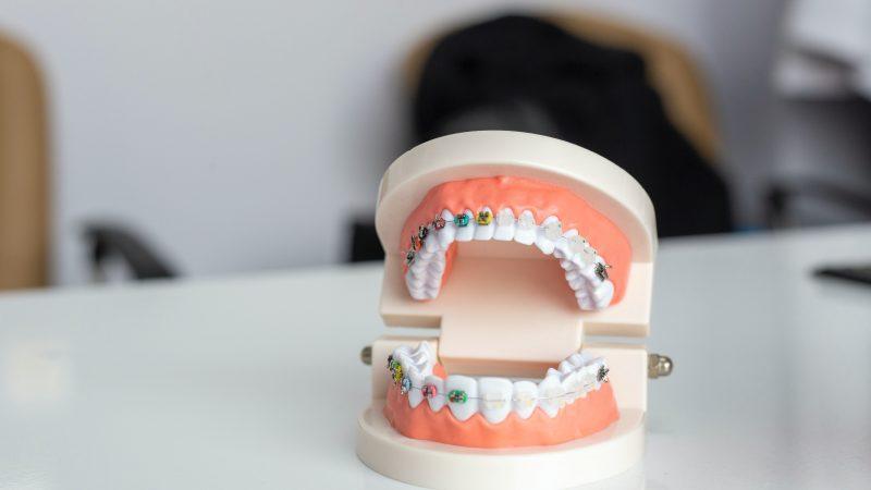 Sådan finder du den bedste tandlæge nær Ballerup